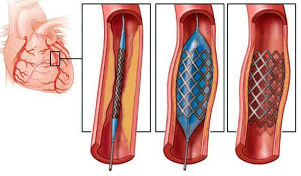 Coronarraygraphy før og efter stenting