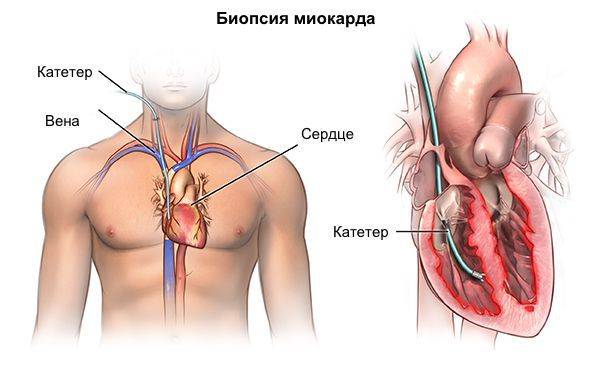 Жүрек ауруы кардиомиопатиямен ауырады