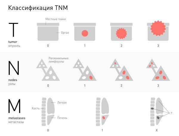 TNM tumor besorolás