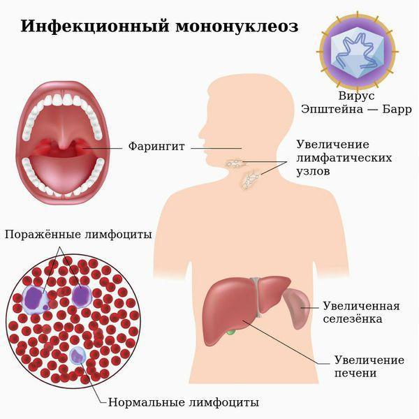 Infectieuze mononucleosis