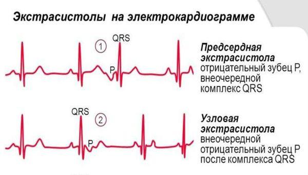 Holter tarafından EKG izleme