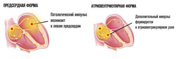 Предсердные и атриовентрикулярные преждевременные импульсы