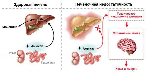 Механизм развития печёночной энцефалопатии
