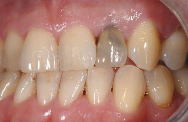Pigmentatie van permanente tanden