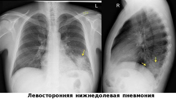 Linkskennkneumonie mit linksseitigem Grad