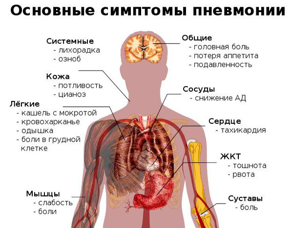 De viktigste symptomene på lungebetennelse
