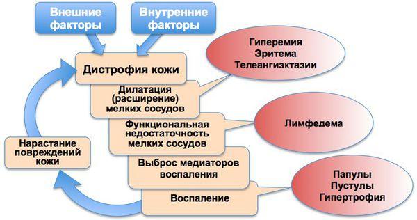 Механизм развития розацеа