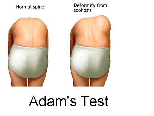 Появление мышечного валика в позе Адамса