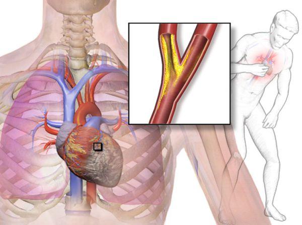 Przyczyna Anginy: Zakłócenie przepływu tlenu w mięśniu serca
