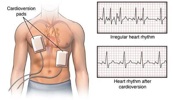 ألياف القلب العضلات