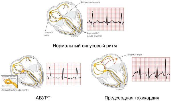 Ταξινόμηση Tahcardia