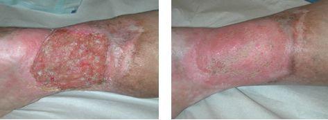 Трофическая язва до и после лечения