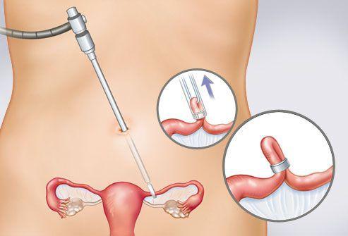 초음파 사진에서 eqascinal 임신