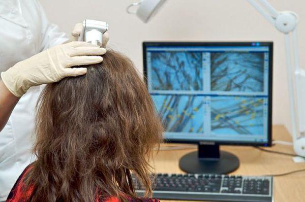 Le cause immediate della perdita dei capelli dopo che Kovid sono arrivate finora sono state studiate: la malattia ha colpito l'umanità relativamente recentemente recentemente. Ma è già noto che SARS-COV-2 ha un impatto negativo su tutti gli organi e i sistemi del corpo, inclusa la testata dei capelli.