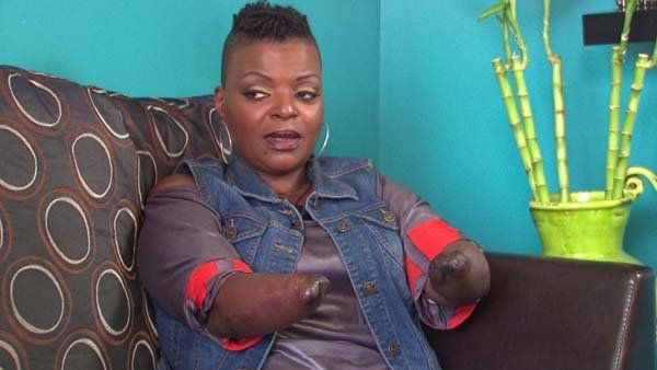 Apryl Brown lost her hands and feet to a staph infection after a discount plastic surgery procedure. (Source: CNN)