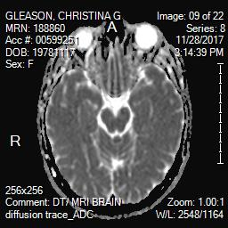 Brain MRI showing optic nerve in white