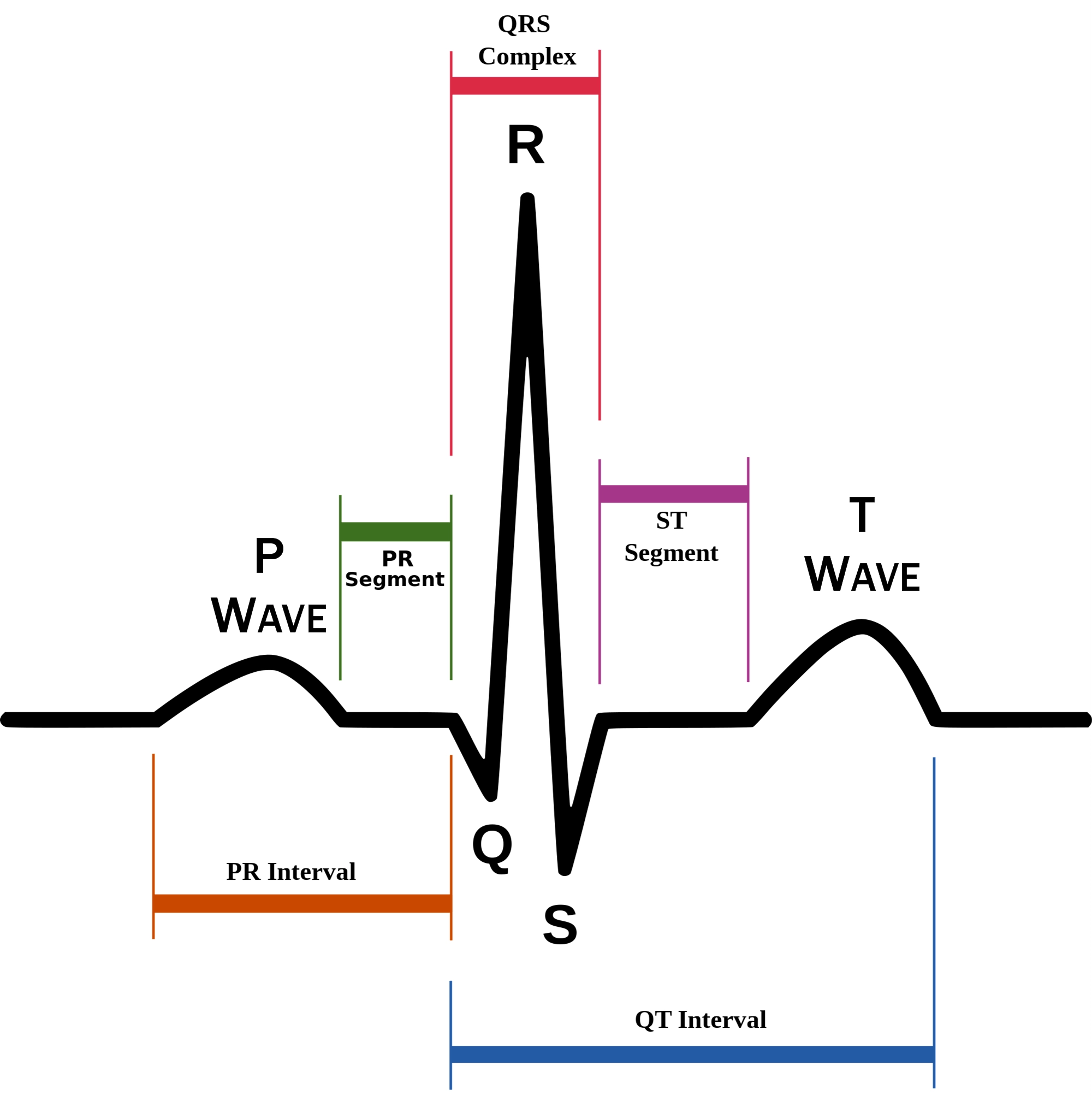 Understanding the ekg signal atrial fibrillation resources for schematic diagram of normal sinus rhythm for a human heart as seen on ecg ccuart Gallery