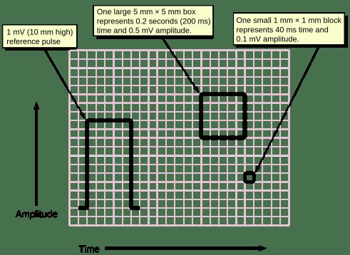 Diagram of electrocardiogram paper; Public Domain image