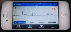 AliveCor ECG reading displayed on smartphone screen