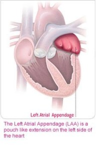 Left Atrial Appendage; Source: Boston Scientific Inc. educational brochure