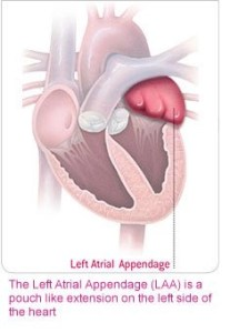 Left Atrial Appendage; Source: Boston Scientific Inc. educational brochure