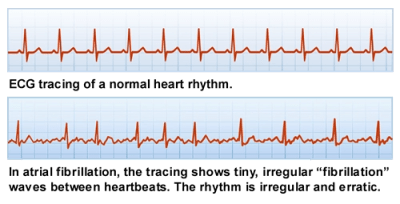 ECG tracings of normal heart beat and heart in atrial fibrillation; Overview of Atrial Fibrillation. Copyright 2012 Patti J. Ryan and A-Fib, Inc.