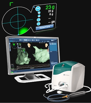Image of the TactiCath Quartz irrigated ablation catheter with EnSite Contact Force Module (Photo St. Jude Medical, Inc.)