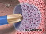 Graphic: Cryoablation heat withdrawl at A-Fib.com