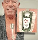 Steve wearing Carnation Ambulatory Monitor (for 1 week in Sept 2018 ) at A-Fib.com