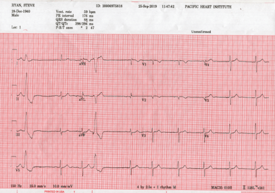 Steve Ryan, A-Fib.com. ECG on Sept 25, 2019 by Dr Doshi. Verdict: all is normal!