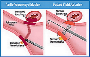 RF ablation vs PFA and risk of esophagus damage at A-Fib.com