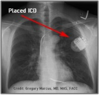 A normal chest X-ray after placement of an ICD