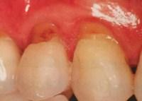 歯ぎしりで歯ぐきが下がる理由