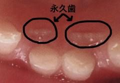 永久歯の前歯が後ろから生えてくる訳