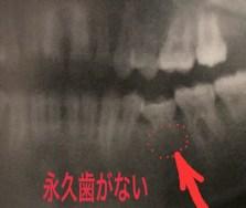 永久歯が最初からない人がいる
