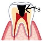 眠れないほどの歯痛!歯ぐきから膿が出てズキズキ痛い虫歯の原因と治療方法