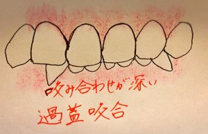 前歯が見えすぎる噛み合わせになる原因