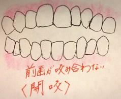 前歯があたらないかみ合わせ