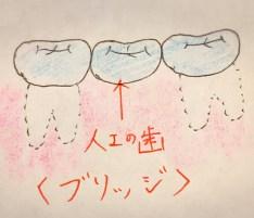 ブリッジにも歯間ブラシが使える