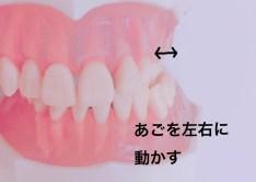 上の奥歯に歯間ブラシを入れる時の注意点