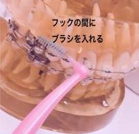 矯正装置に歯間ブラシが使える理由