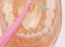 歯間ブラシの使い方