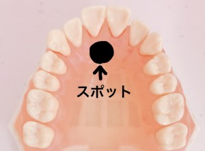 口が開いている子の舌の位置