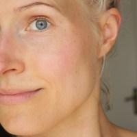 Asiaa ja kokemuksia retinolista