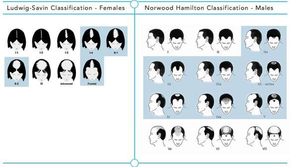 男女落髮期別的分類有助於初步評估植髮所需株數