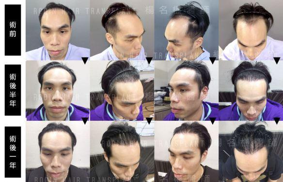 拯救禿頭,羅丹ARTAS 植髮,生髮育髮過程圖