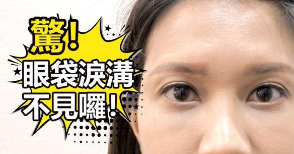 眼袋 淚溝 手術 -- 終結惱人 黑眼圈