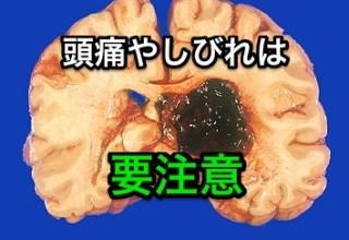 脳出血前兆