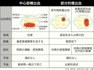 脳幹出血の種類