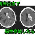 視床出血脳室穿破